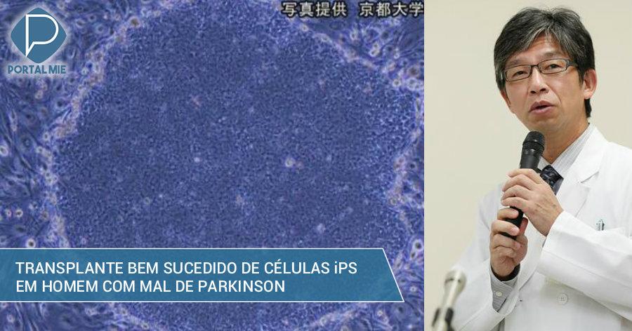 &nbspTransplante inédito no mundo feito no Japão: luz para Mal de Parkinson